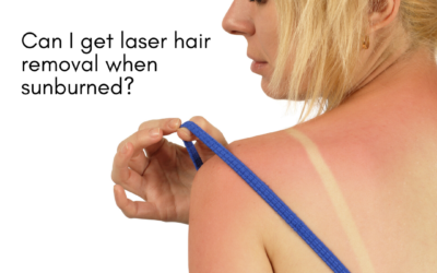 Laser Hair Removal and Sun Exposure