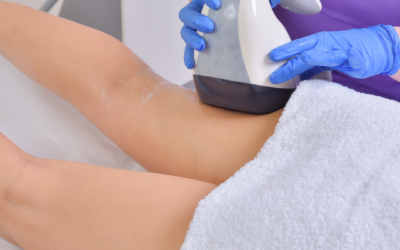The Best Cellulite Treatments That Actually Work